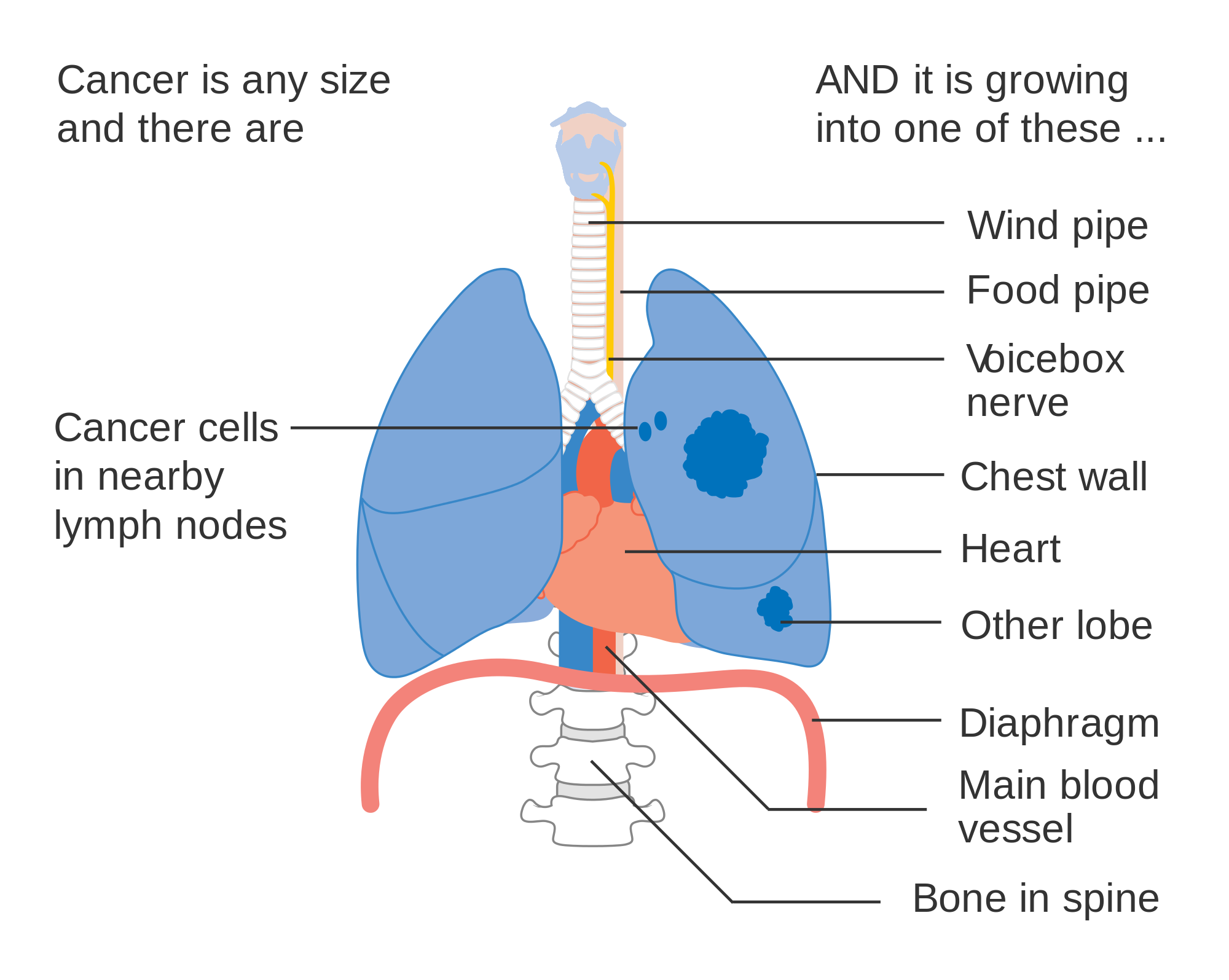 Three Quick Facts About Lung Cancer Treatments