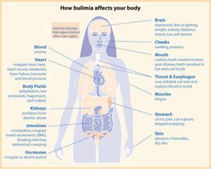 Bulimia Health Diagram